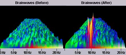 10hz brainwave entrainment